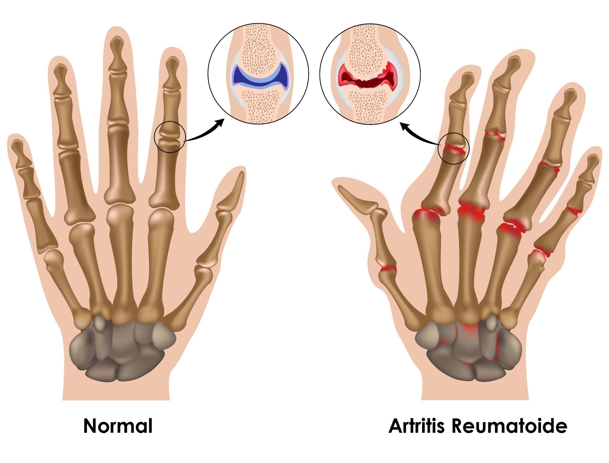 Image result for artritis reumatoide