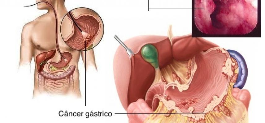que es cancer gastrico