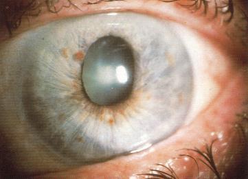Diabetes y Glaucoma: Contrólalos a tiempo