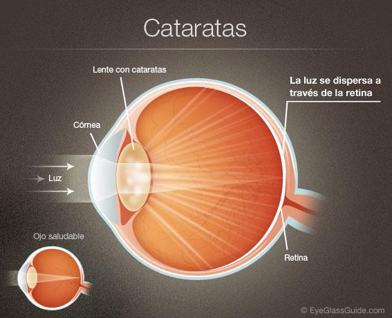 Alteraciones oculares por diabetes