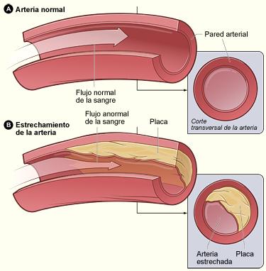 Enfermedad de las arterias coronarias