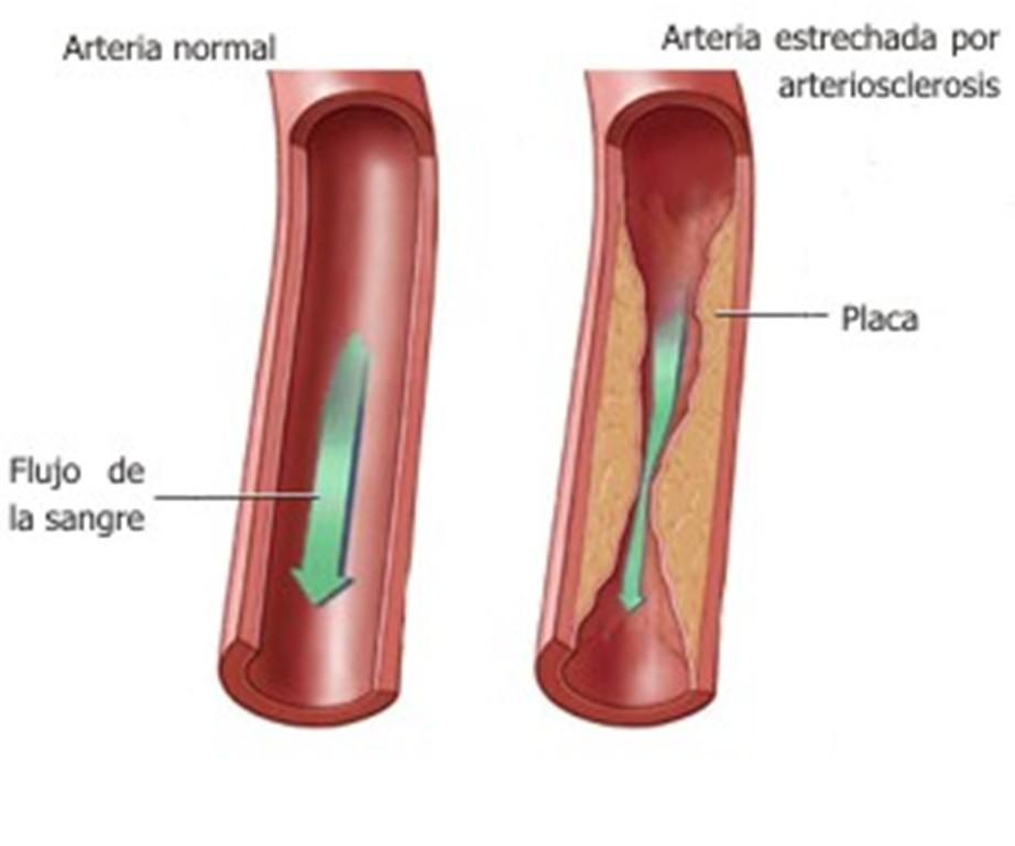 Diabetes mal cuidada desencadena daños en órganos vitales