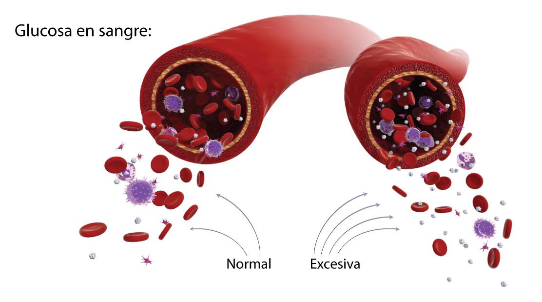 Factores que afectan su nivel de glucosa en la sangre
