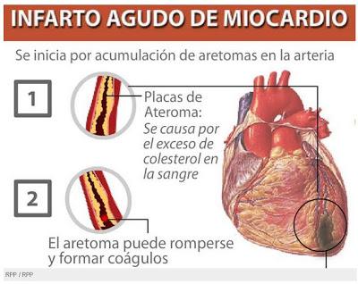 """Cardiólogos mexicanos demandan acciones enérgicas del gobierno  para frenar muertes por infartos ligados al consumo de alimentos y bebidas """"chatarra"""""""