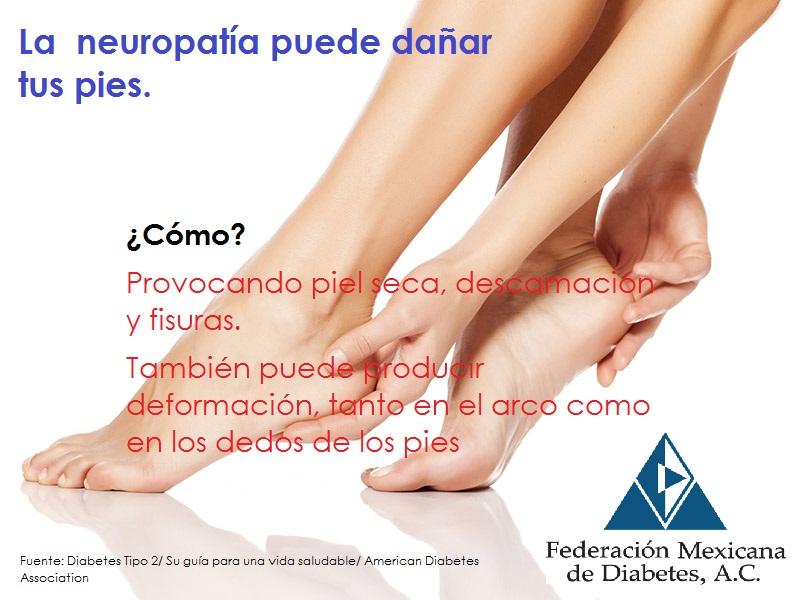 La Neuropatía en la diabetes y el daño en los pies