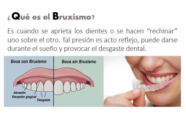 El estrés y su impacto en la salud bucal