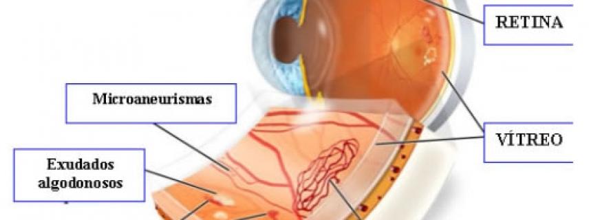 Complicaciones de los ojos